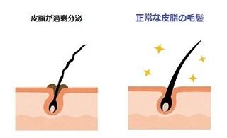 hishi_hikaku.jpg