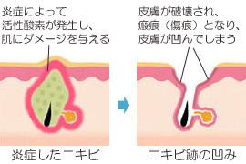 nikibi_atoclear_003.jpg
